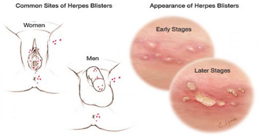If someone has lesions (sores) on their body due to herpes, then they can definitely infect someone else 2