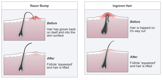 ingrownhair razor bump